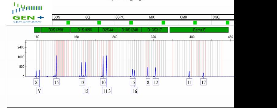 Biểu đồ phân tích gen từ mẫu móng tay không ổn định