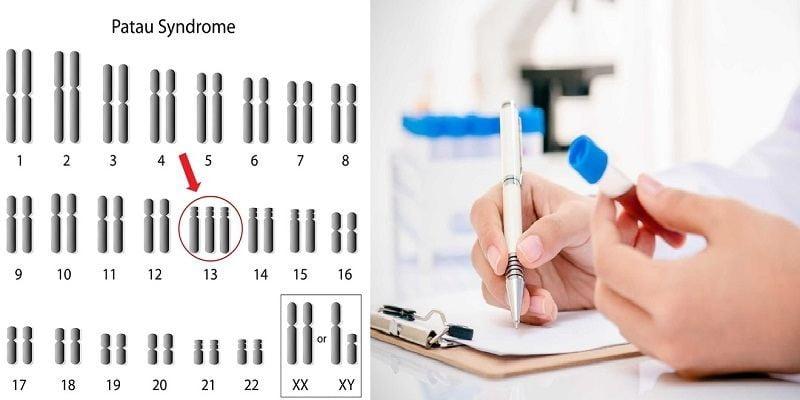 hinh-anh-hoi-chung-patau-trisomy-13-gia-dinh