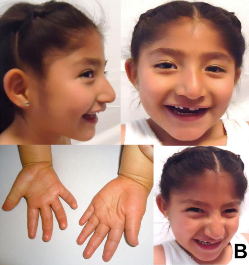 Hội chứng Angelman – Cách Phát Hiện Phòng Tránh