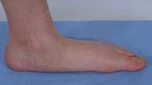 hoi-chung-klinefelter-ban-chan-det-flat-feet