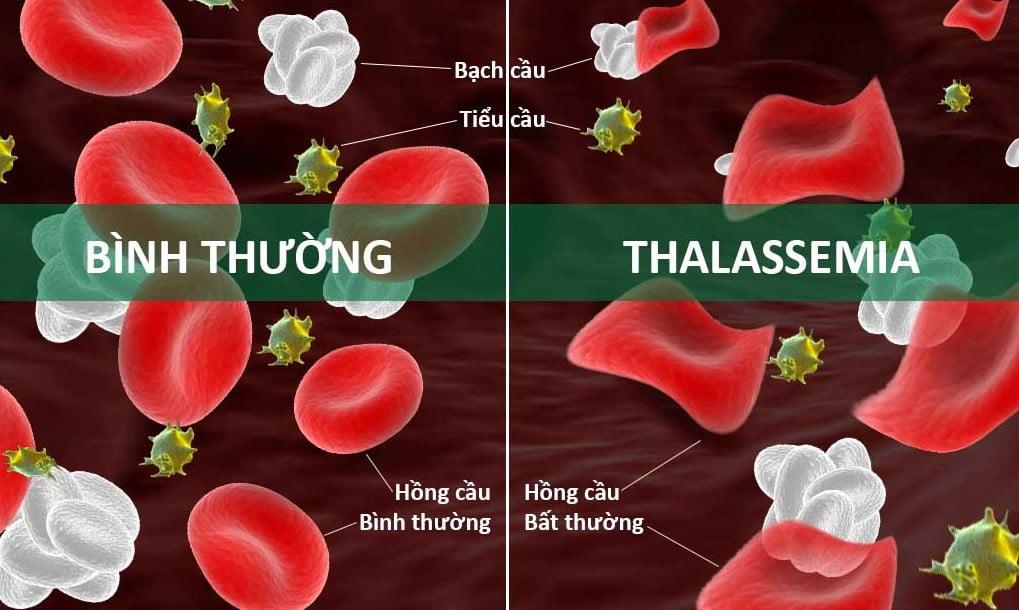 7 Câu Hỏi Thường Gặp Về Bệnh Tan Máu Bẩm Sinh Thalassemia