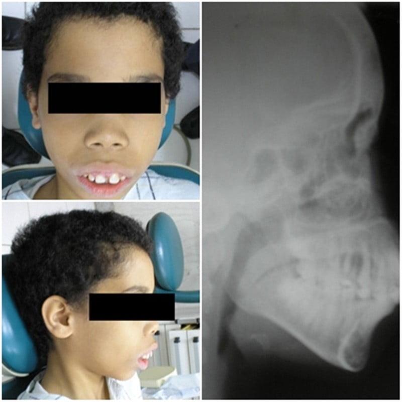 mot-benh-nhan-mac-benh-thalassemia