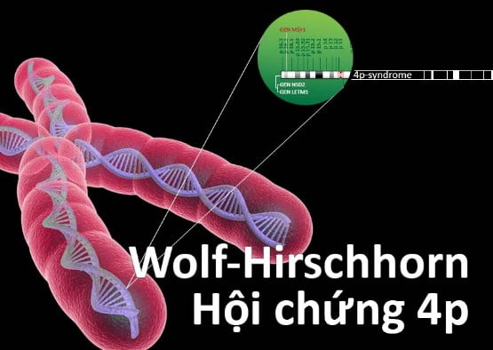 nguyen-nhan-hoi-chung-wolf-hirschhorn-4p-la-do-roi-loan-nhiem-sac-the