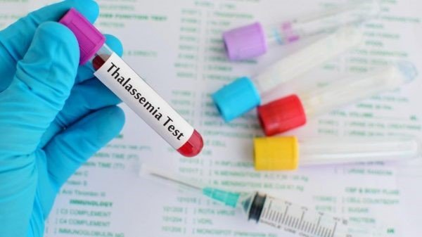 thalassemia test