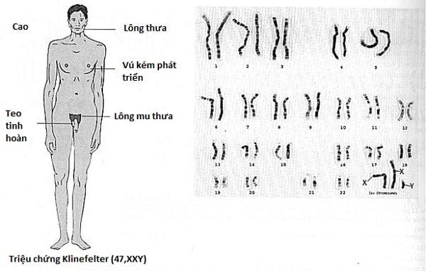 trieu-chung-benh-klinefelter-xxy