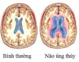 gian-nao-that-nao-ung-thuy-genplus