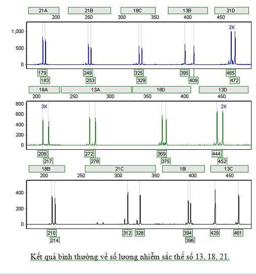 ket-qua-QF-PCR-binh-thuong