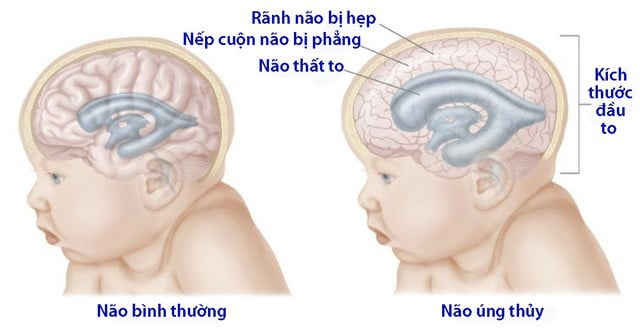 nao-ung-thuy-genplus-tong-hop